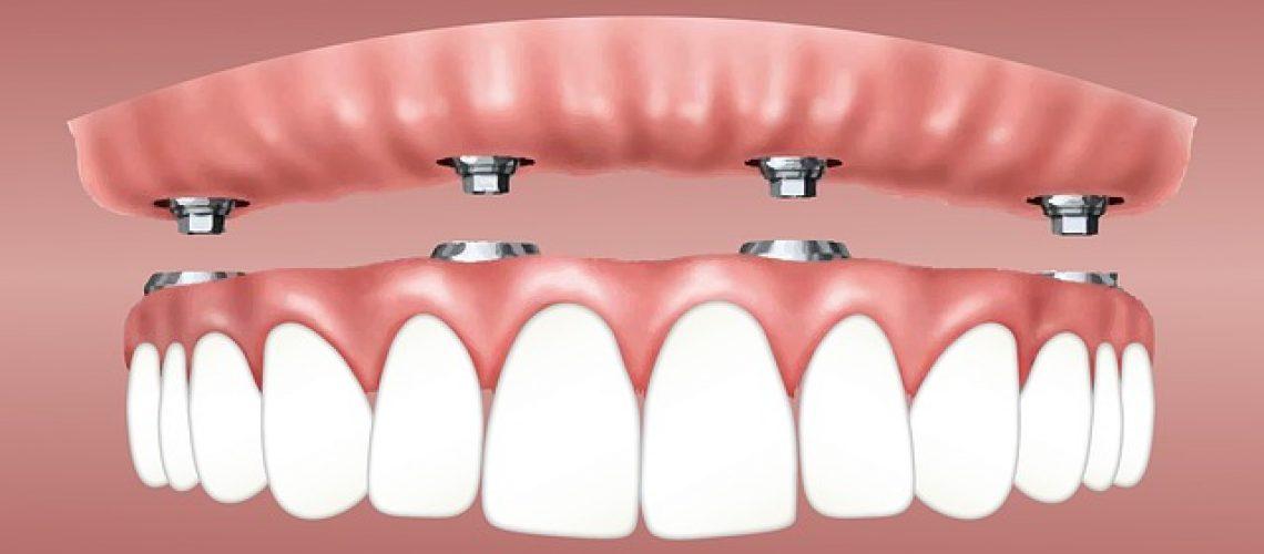 כמה עולה השתלת שיניים